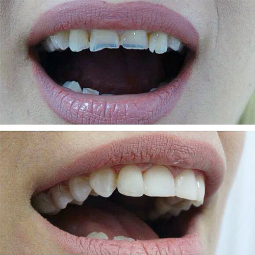 Odontotherapy